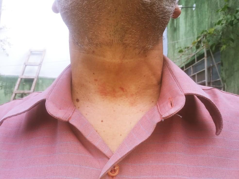 Jornalistas relatam agressões por policiais militares em Alegrete; exame de corpo de delito apontou lesões — Foto: Arquivo pessoal