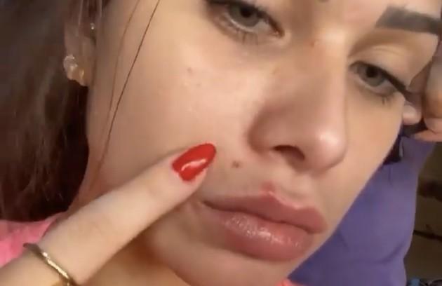 """Flavia Pavanelli, de """"As aventuras de Poliana"""", também publicou uma foto sem maquiagem e falou sobre o problema das espinhas (Foto: Reprodução/Instagram)"""