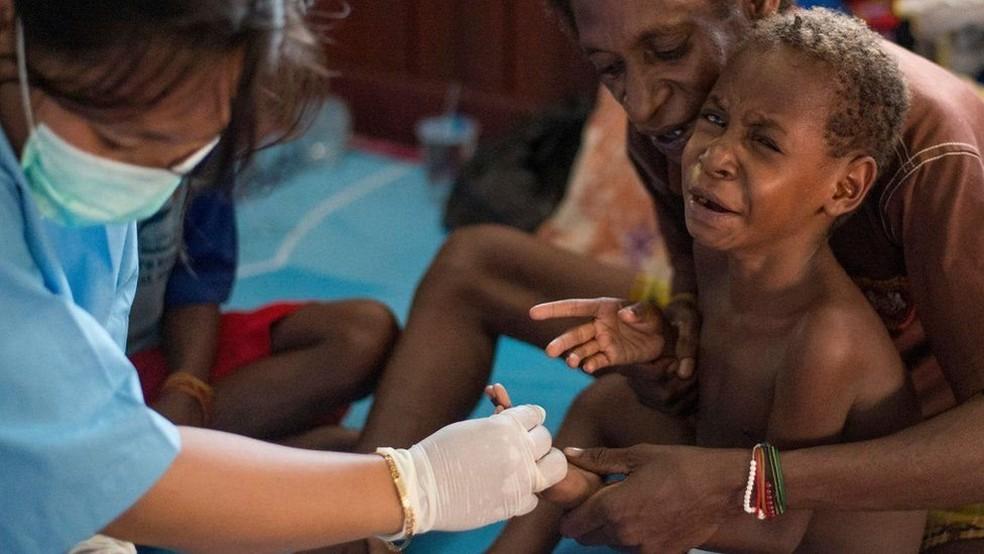 Equipe de saúde afirma que faltam recursos médicos básicos para lidar com o problema (Foto: AFP)
