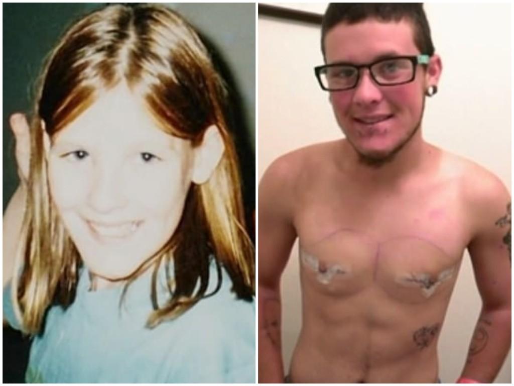 Wiley quando criança e pouco tempo depois da cirurgia para retirada dos seios (Foto: Reprodução Extreme Love)