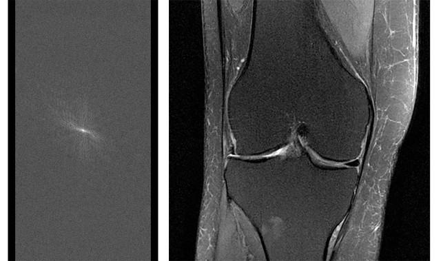 MRI ressonância magnética (Foto: Divulgação/Facebook)