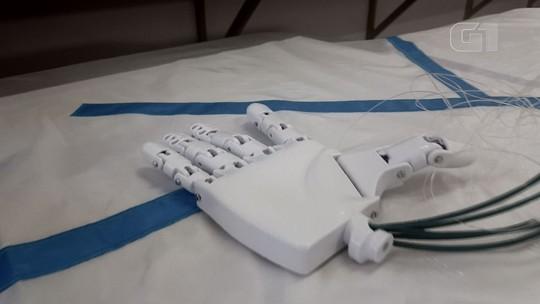Projeto de estudantes de Itajubá desenvolve prótese biônica em 3D de baixo custo