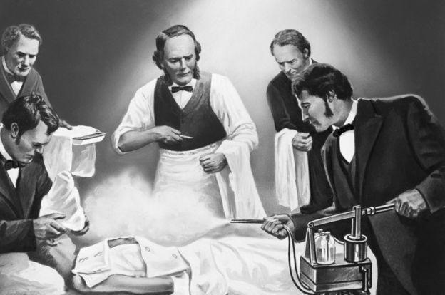 Ilustração mostra Lister pulverizando um paciente com ácido carbólico (Foto: GETTY IMAGES via BBC)