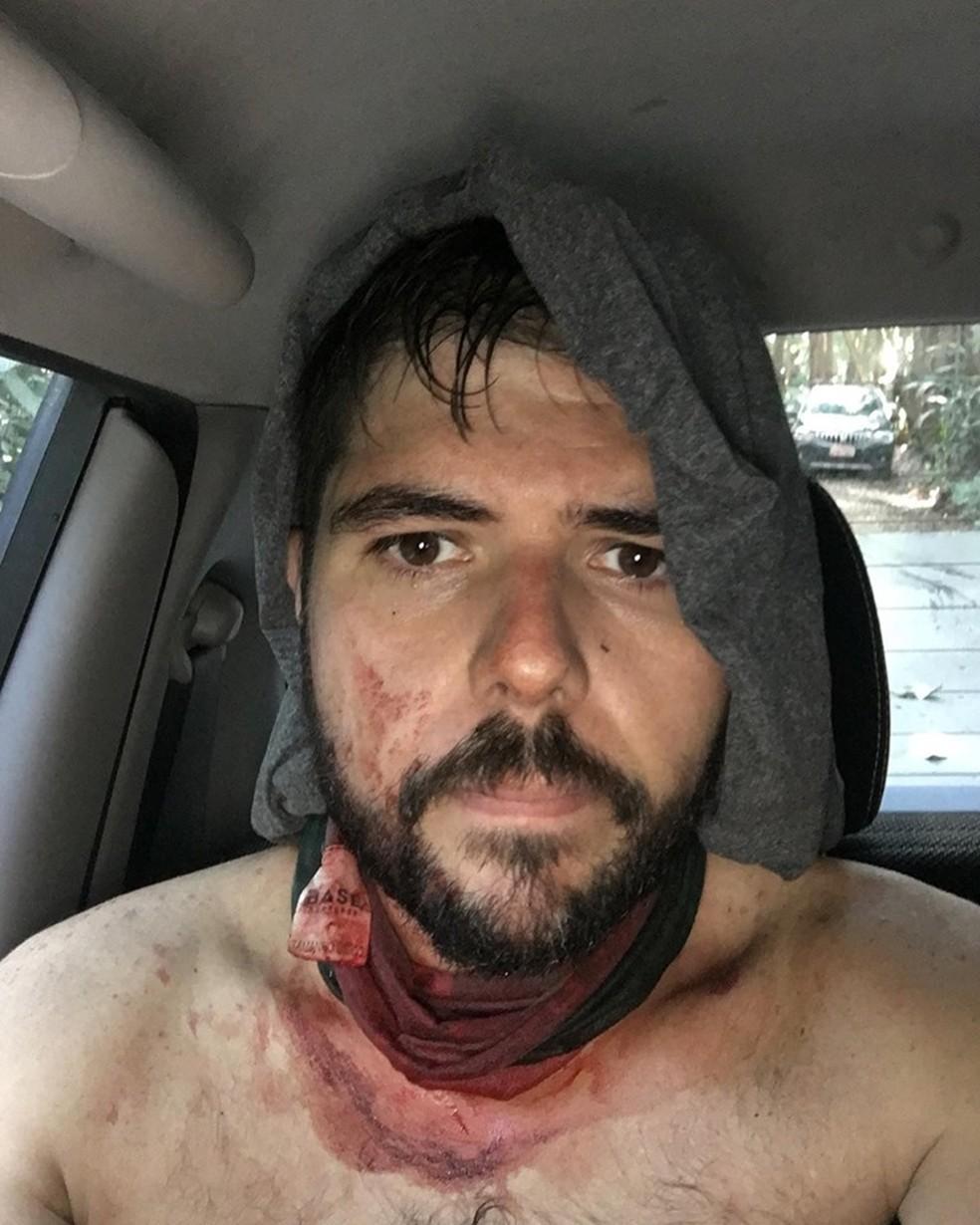 Bruno foi agredido por criminosos durante assalto em trilha na Floresta da Tijuca — Foto: Reprodução/ Facebook