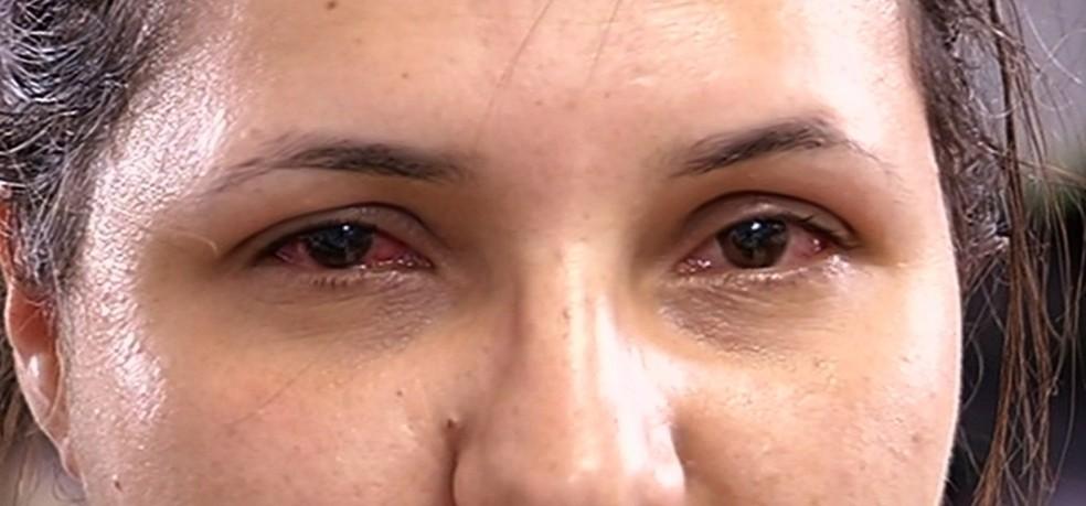 Olhos vermelhos e lacrimejantes são sintomas da conjuntivite  (Foto: Reprodução/TV Anhanguera)