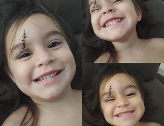 Isabella, 2, precisou levar 6 pontos no rosto (Foto: Reprodução Facebook)