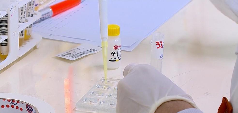 Número de diagnósticos de toxoplasmose gestacional aumentam no primeiro trimestre em Guajará-Mirim — Foto: Reprodução/RBSTV