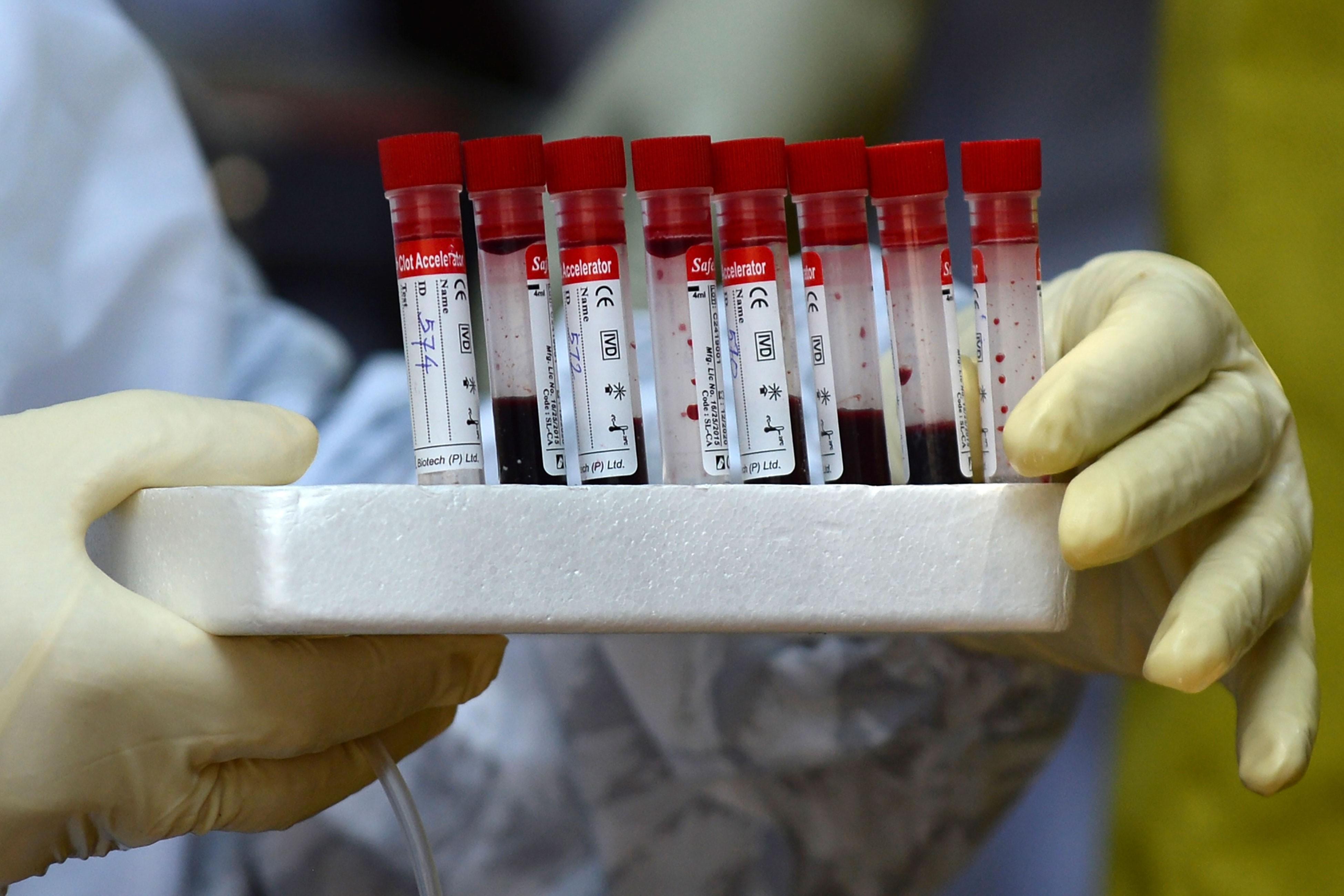 Coronavírus: prefeituras da região de Campinas confirmam novos casos nesta segunda-feira, 18 de maio
