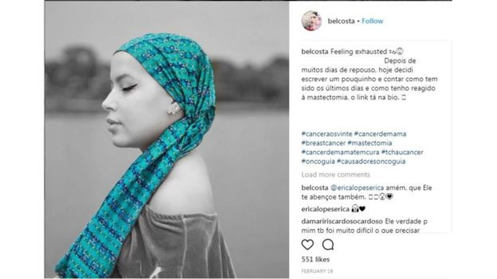 """""""Ninguém espera ouvir uma notícia dessas aos 20 anos. Não foi nada fácil"""", diz Isabel Costa, que retratou online a batalha contra o câncer de mama (Foto: REPRODUÇÃO INSTAGRAM)"""