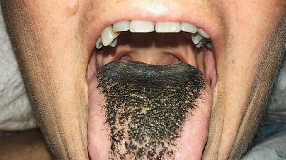 A estranha doença conhecida como língua 'peluda'