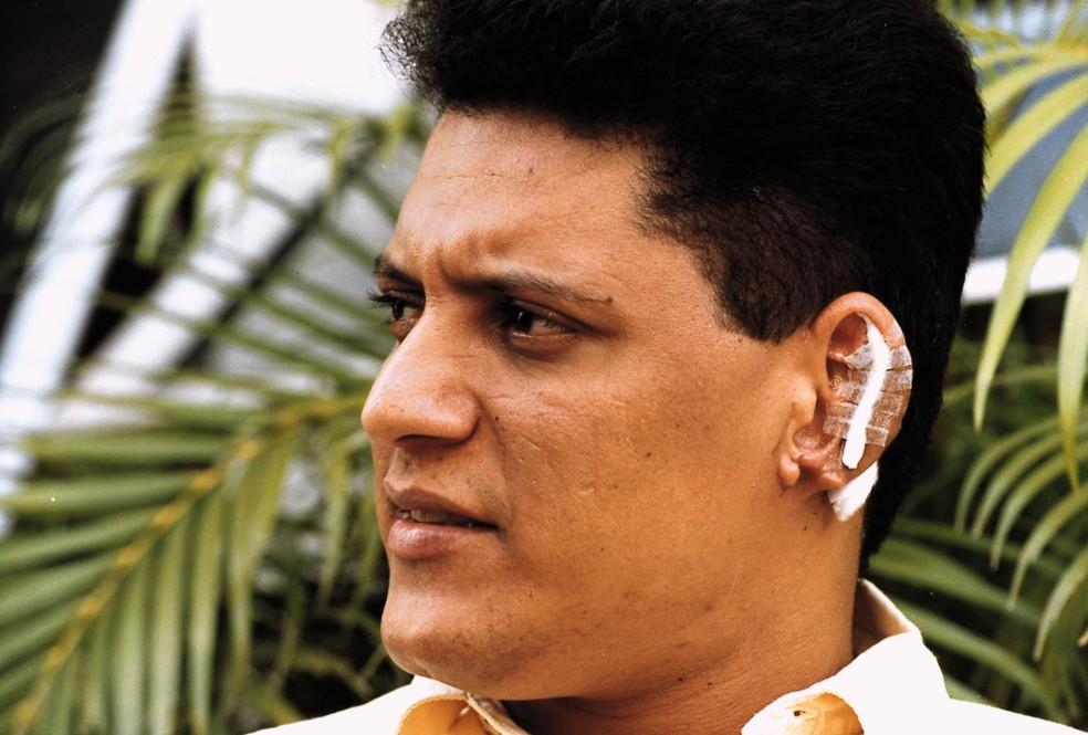Wellington Camargo após implante de parte da orelha, em Goiânia — Foto: Reprodução/ O Popular