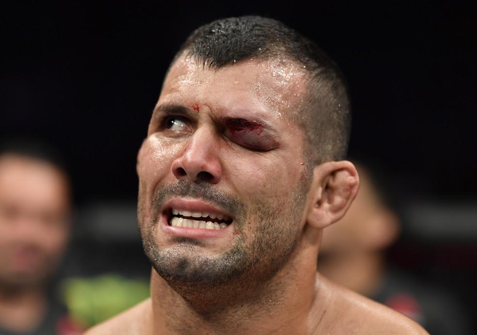 Rodolfo Vieira terminou a luta com o olho esquerdo completamente fechado — Foto: Getty Images
