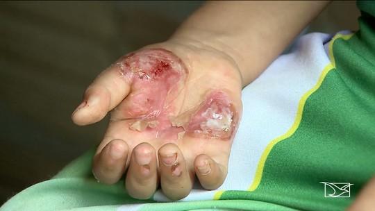 'Não terá sequelas físicas', dizem médicos sobre criança torturada pela mãe em Apicum-Açu
