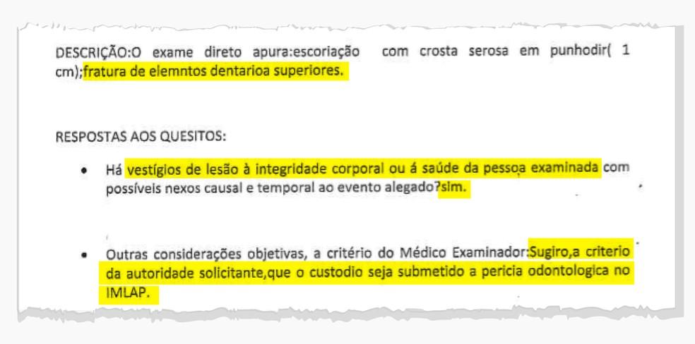 Exame confirma lesões apontadas por preso — Foto: Reprodução/Wagner Magalhães/Editoria de Arte G1