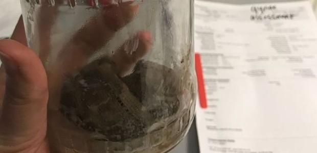Material cirúrgico (supostamente gaze) retirado de dentro de Alexandra (Foto: Arquivo Pessoal/Reprodução BBC)
