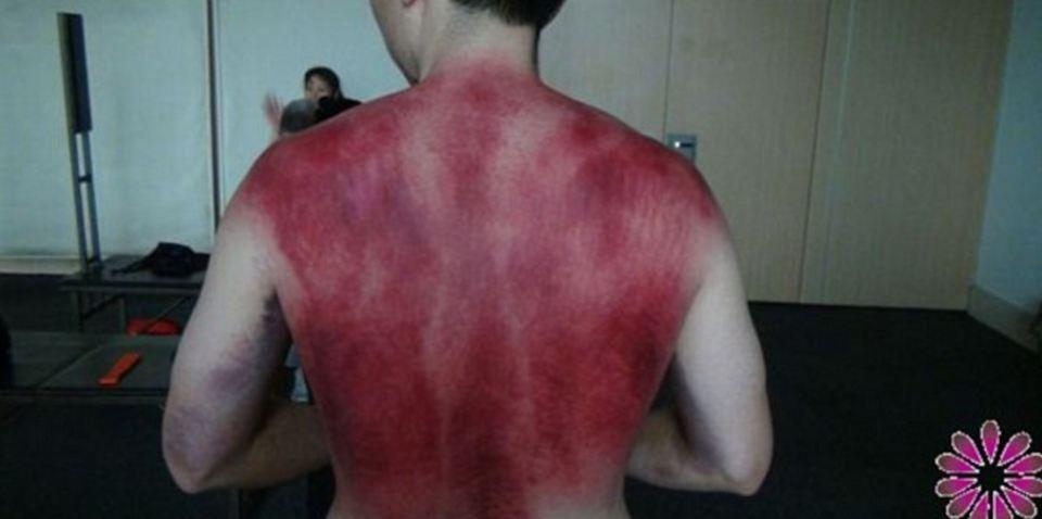 Paciente tratado com violência pelo 'curandeiro' chinês