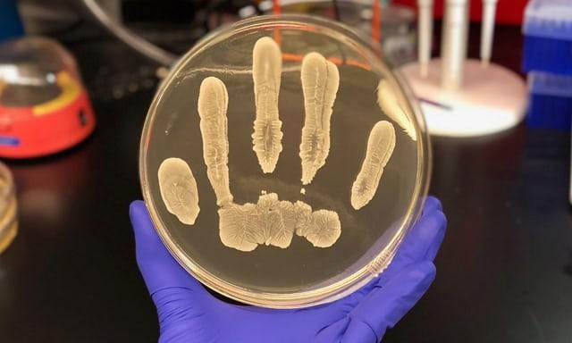 Staphylococcus epidermidis (Foto: UC San Diego Health)
