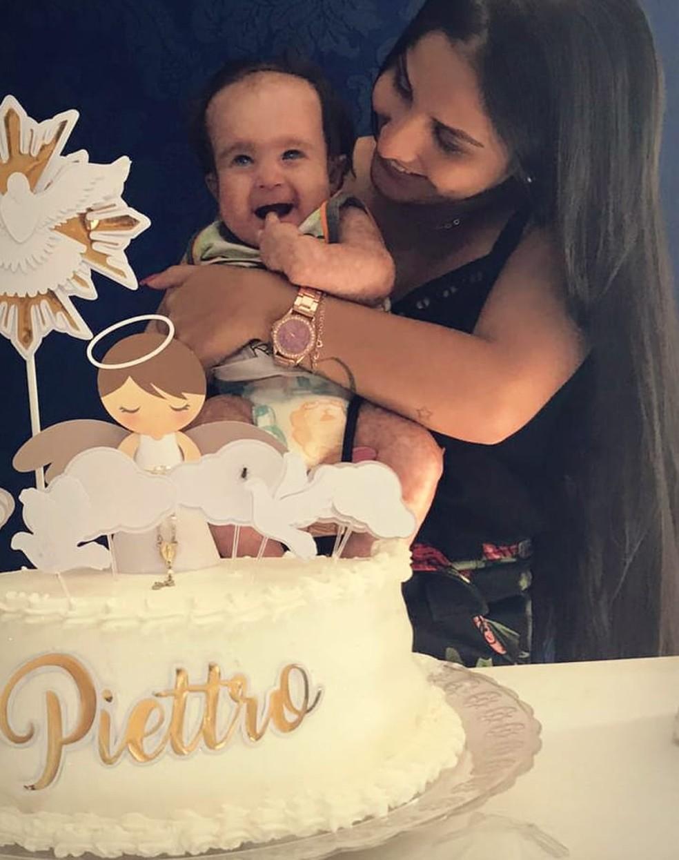 Piettro, de Itapira (SP), tem 11 meses e foi diagnosticado aos três meses com a síndrome de Rothmund-Thomson  — Foto: Natália Matos/Arquivo Pessoal