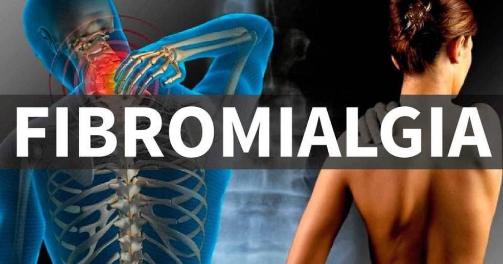 Pessoas com fibromialgia podem ter direito a atendimento prioritário em Juiz de Fora — Foto: Reprodução
