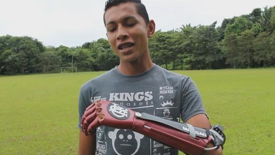 Flamenguista ganha prótese de braço 3D com o escudo do time: 'Eu sabia que precisava superar'
