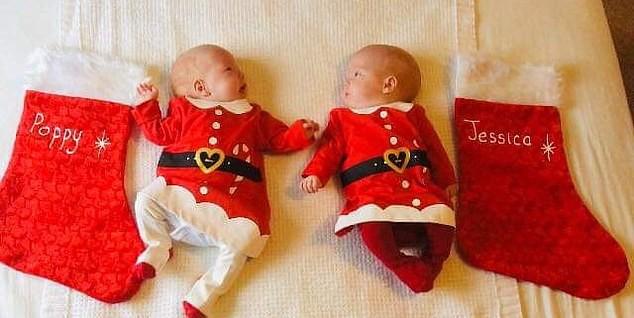 Gêmeas se preparam para primeiro Natal após cirurgia de risco quando ainda estavam no útero (Foto: Reprodução / Daily Mail)