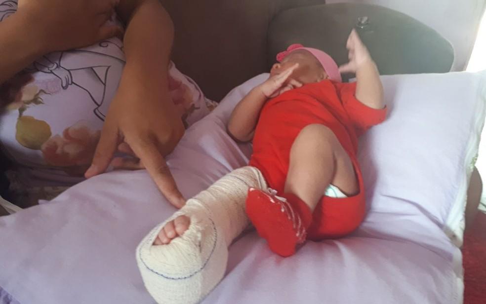 Bebê teve perna fraturada durante parto, em hospital no sul da Bahia (Foto:  Giro Ipiaú)
