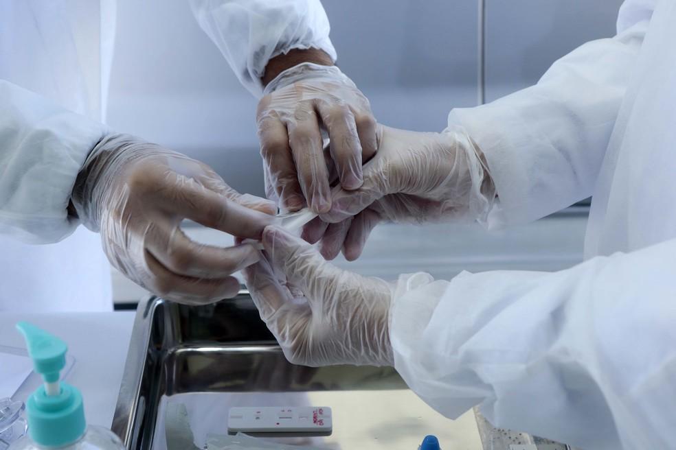 Teste de coronavírus — Foto: DANIEL GALBER/UAI FOTO/ESTADÃO CONTEÚDO