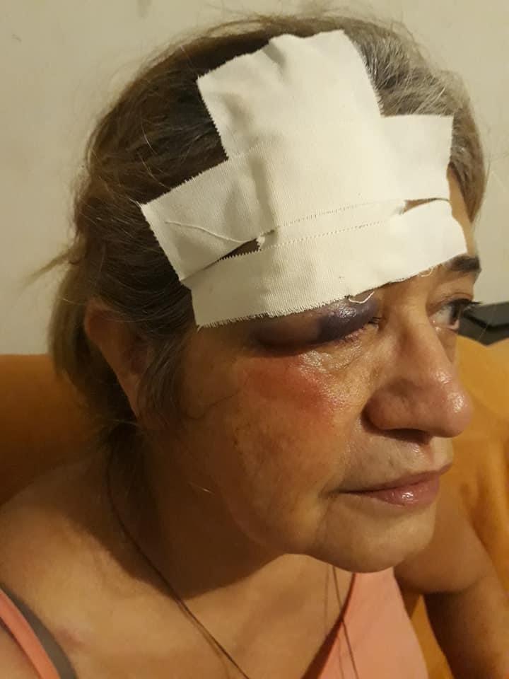 Homem detido suspeito de dar socos em vizinha é agredido por moradores