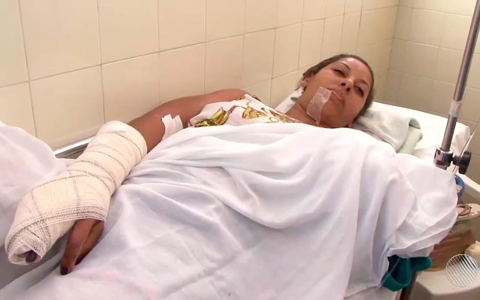 Dona de casa teve braço decepado em acidente na Bahia (Foto: Reprodução/TV Subaé)