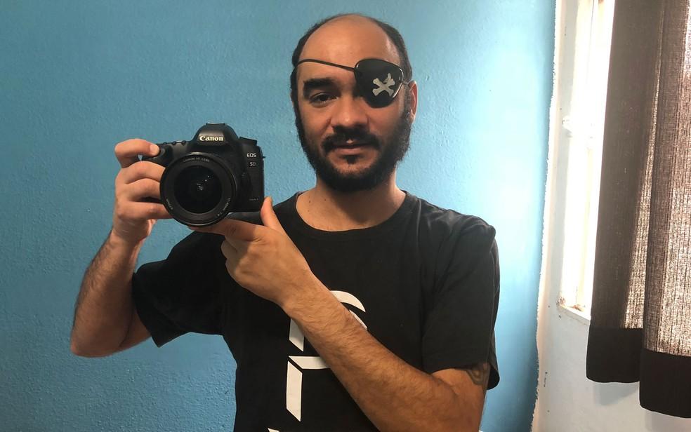 Sérgio Silva, fotógrafo que perdeu a visão do olho esquerdo após ser atingido por bala de borracha disparada pela PM em manifestação de 13 de junho de 2013 em São Paulo (Foto: Kleber Tomaz/G1)