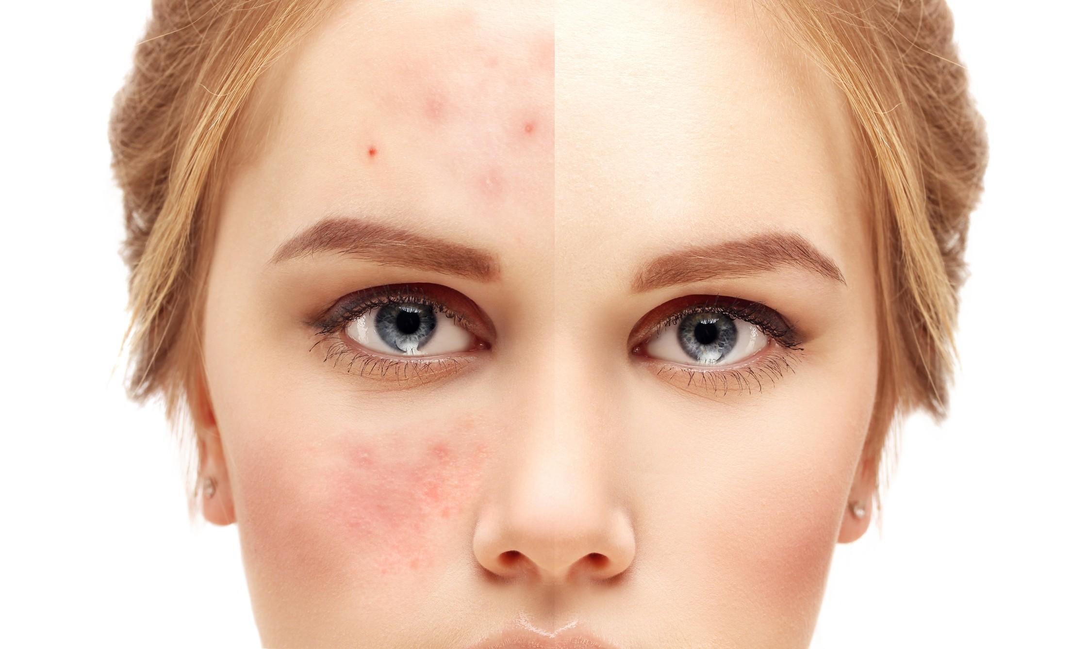 Microbiota com função de proteger a pele (Foto: Getty Images)