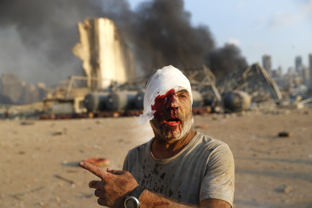 Homem ferido em explosão na zona portuária de Beirute, no Líbano — Foto: Hussein Malla/AP