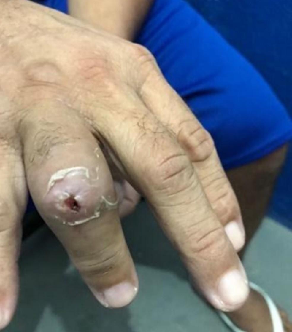 Preso mostra ferimento no dedo. Relatório diz que isso é feito para deixar o detento sem força para empunhar facas contra os agentes — Foto: MNPCT