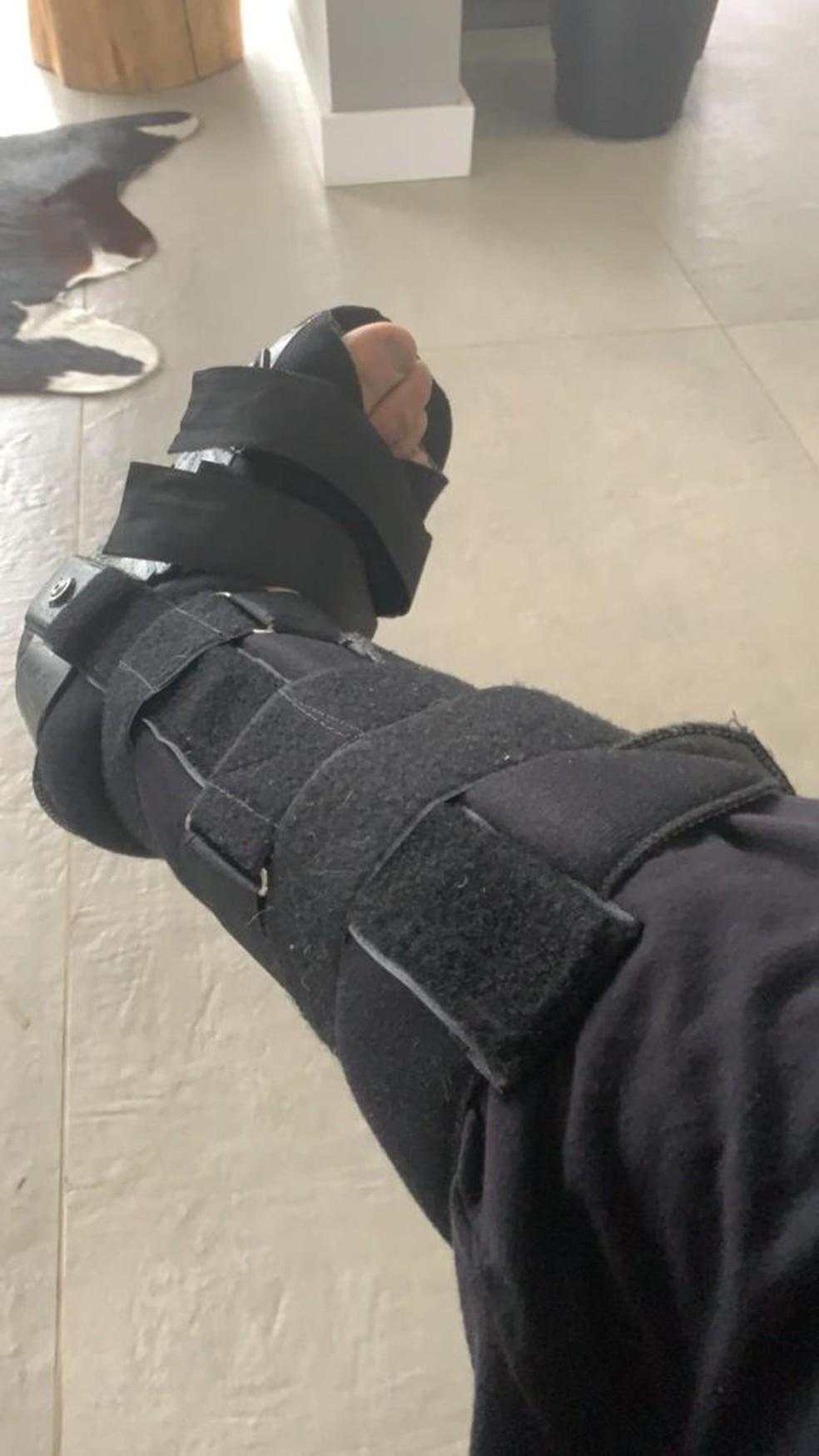Wanderlei Silva fraturou um osso do pé no acidente — Foto: Arquivo pessoal