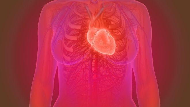 Embora o risco de infarte seja menor em mulheres, certos fatores de risco parecem ter um impacto maior sobre elas (Foto: Getty Creative via BBC News Brasil)