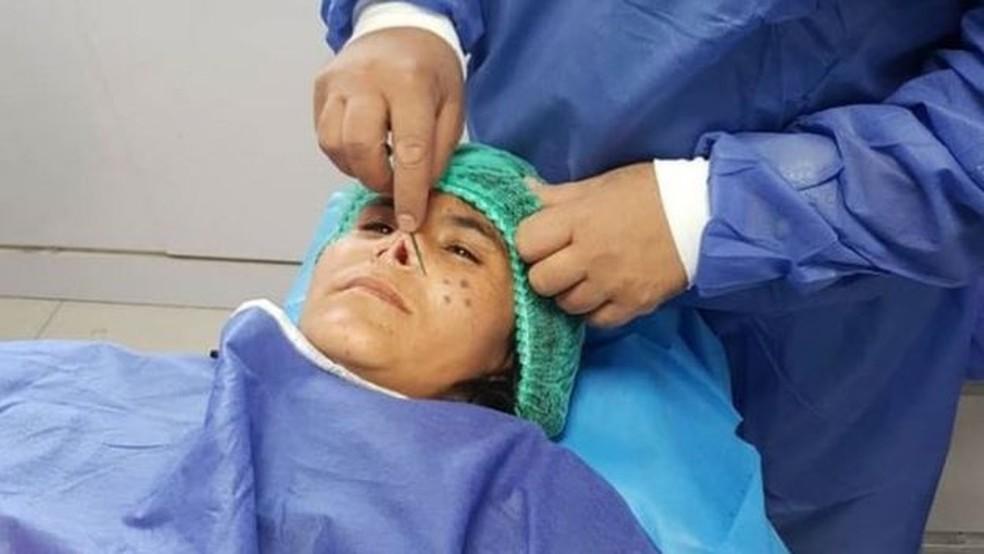 Zarka recebeu anestesia local para a operação — Foto: BBC