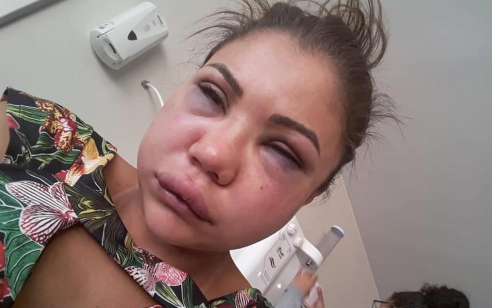 Técnica em enfermagem Laiane dos Santos denuncia que foi espancada pelo namorado em Valparaíso de Goiás — Foto: Reprodução/ Facebook