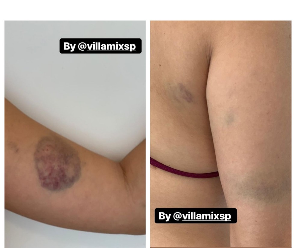 Jovem diz ter sido agredida na Villa Mix, em SP — Foto: Reprodução/Instagram