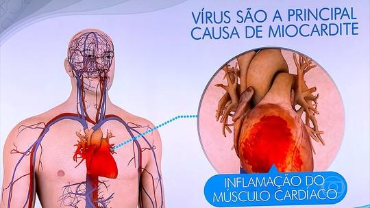 Especialistas explicam a relação do vírus da gripe com o coração