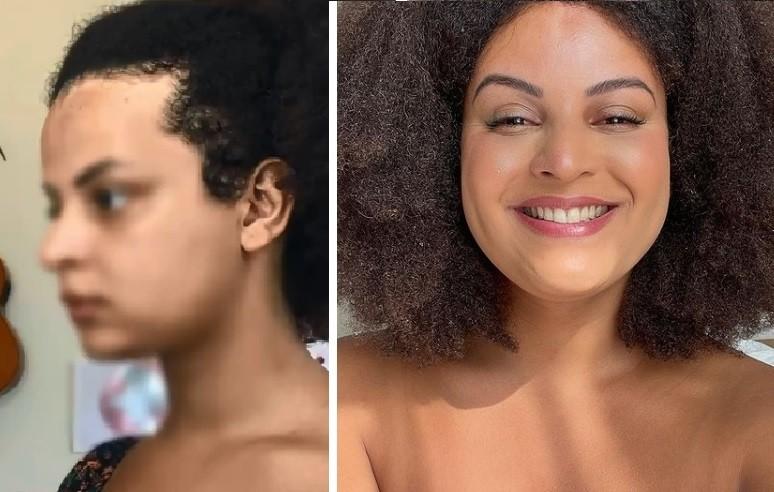 Gabriela antes e depois da frontoplastia (Foto: Reprodução)