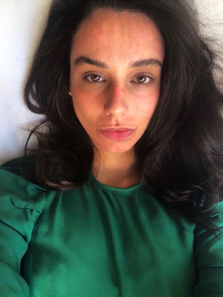 No dia seguinte sem maquiagem: muito machucada, mas sem dores (Foto: Olívia Nicoletti )