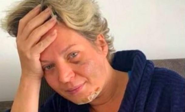 Joice Hasselmann mostra hematomas no rosto