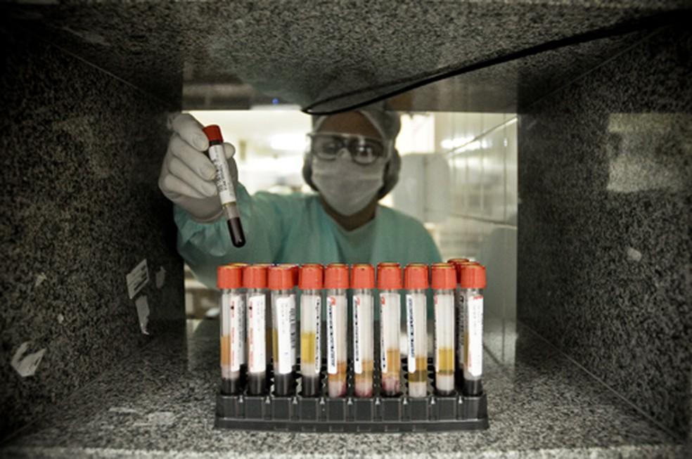 Testagem rápida para coronavírus no DF — Foto: Breno Esaki/Agência Saúde