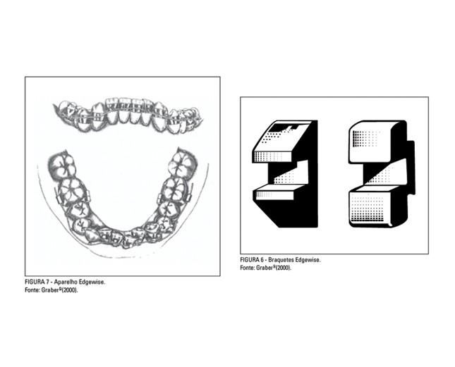 Angles criou mais dois alinhadores: o Arco de Cinta, em 1915, e o Edgewise, em 1928 (Foto: Reprodução)