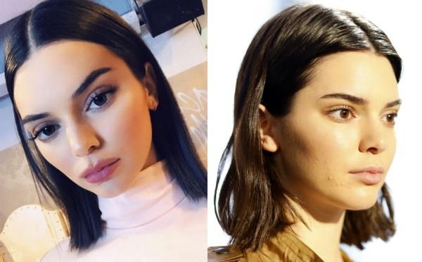 A foto de Kendall Jenner que levantou as suspeitas de que ela teria passado por cirurgias plásticas (Foto: Instagram/Getty Images)