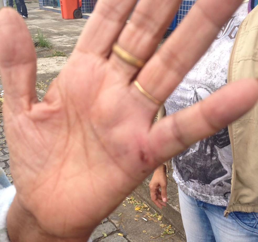 Maria mostra mão ferida após ter sido agredida por conta de sua prática religiosa (Foto: Arquivo Pessoal)