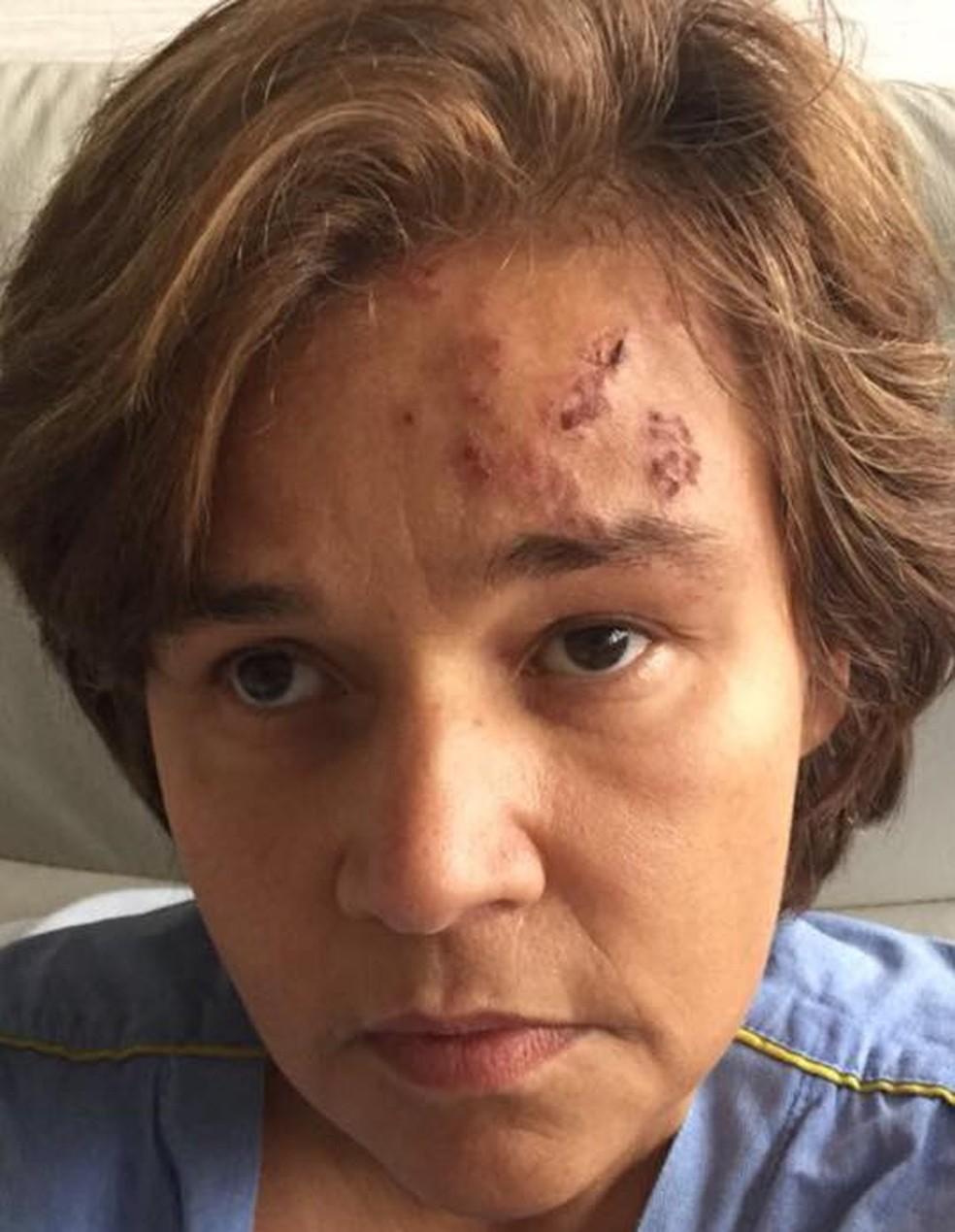 Claudia Rodrigues teve herpes-zóster em 2017 (Foto: Reprodução/Facebook/Claudia Rodrigues)
