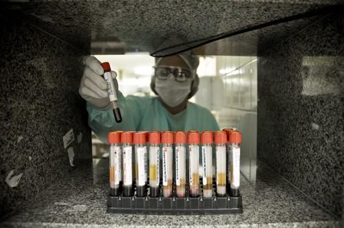 Coronavírus: com mais 28 mortes, DF chega a 699 óbitos; casos sobem para 57,8 mil