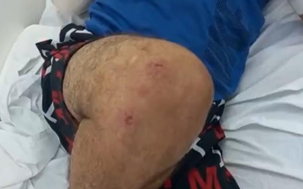 Motorista de aplicativo mostra ferimentos após briga com passageiro que se recusou a pagar corrida em Goiás — Foto: Reprodução/TV Anhanguera