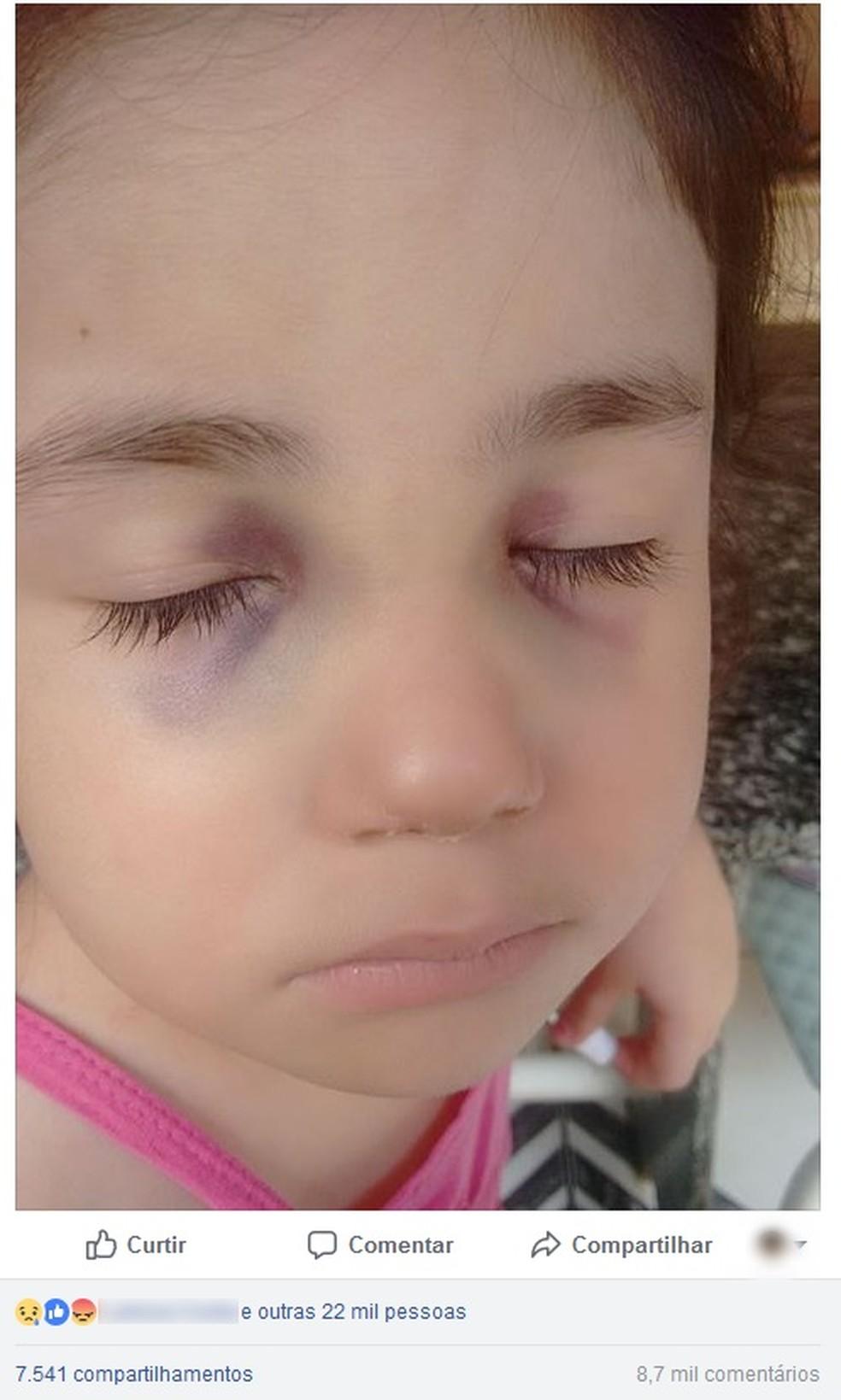 Após o crime, babá fez um desabafo na internet com a foto da menina de olhos roxos por conta de agressões no ano passado (Foto: Reprodução/Facebook)